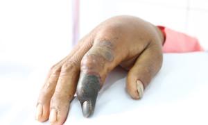 Anh tiều phu bị rắn hổ mang chúa dài 2,4m cắn, phải tháo khớp ngón tay