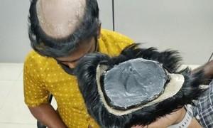 Clip giấu gần 1kg vàng dưới lớp tóc giả