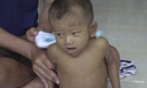 Bé trai 3 tuổi mang nhiều căn bệnh quái ác, rất cần được giúp đỡ!
