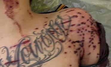 Vụ nổ súng gần trạm BOT khiến 1 người nguy kịch: Khởi tố 1 bị can