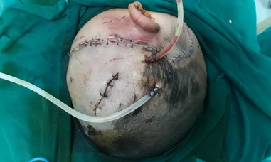 Cháu bé 4 tuổi bị chó cắn toác đầu, chấn thương sọ não