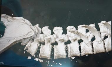 Bắt vít xuyên vào xương sống chữa trượt đốt sống lưng
