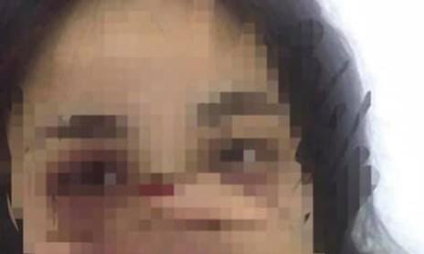 Bác sĩ bị nữ sinh thực tập tố hành hung, từng cầm dao đuổi người nhà bệnh nhân