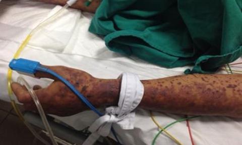 Ông chủ bán thịt nhập viện vì viêm màng não do liên cầu khuẩn lợn