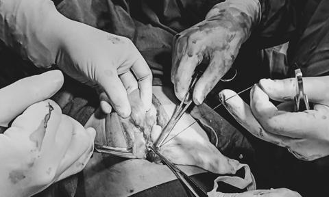 Nối 15cm ruột non cứu sống người đàn ông bị tai nạn giao thông