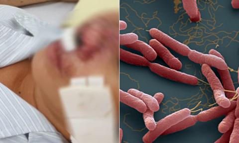 Thông tin về bệnh Melioidosis (Whitmore) và cách phòng chống