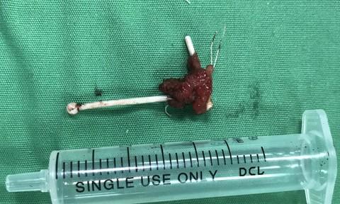 Phẫu thuật sỏi bàng quang, phát hiện... vòng tránh thai