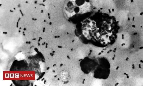 Ngôi làng ở Trung Quốc phải cách ly vì có người chết vì dịch hạch