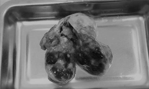 Suýt đột tử vì 2 khối u nhầy di động trong buồng tim